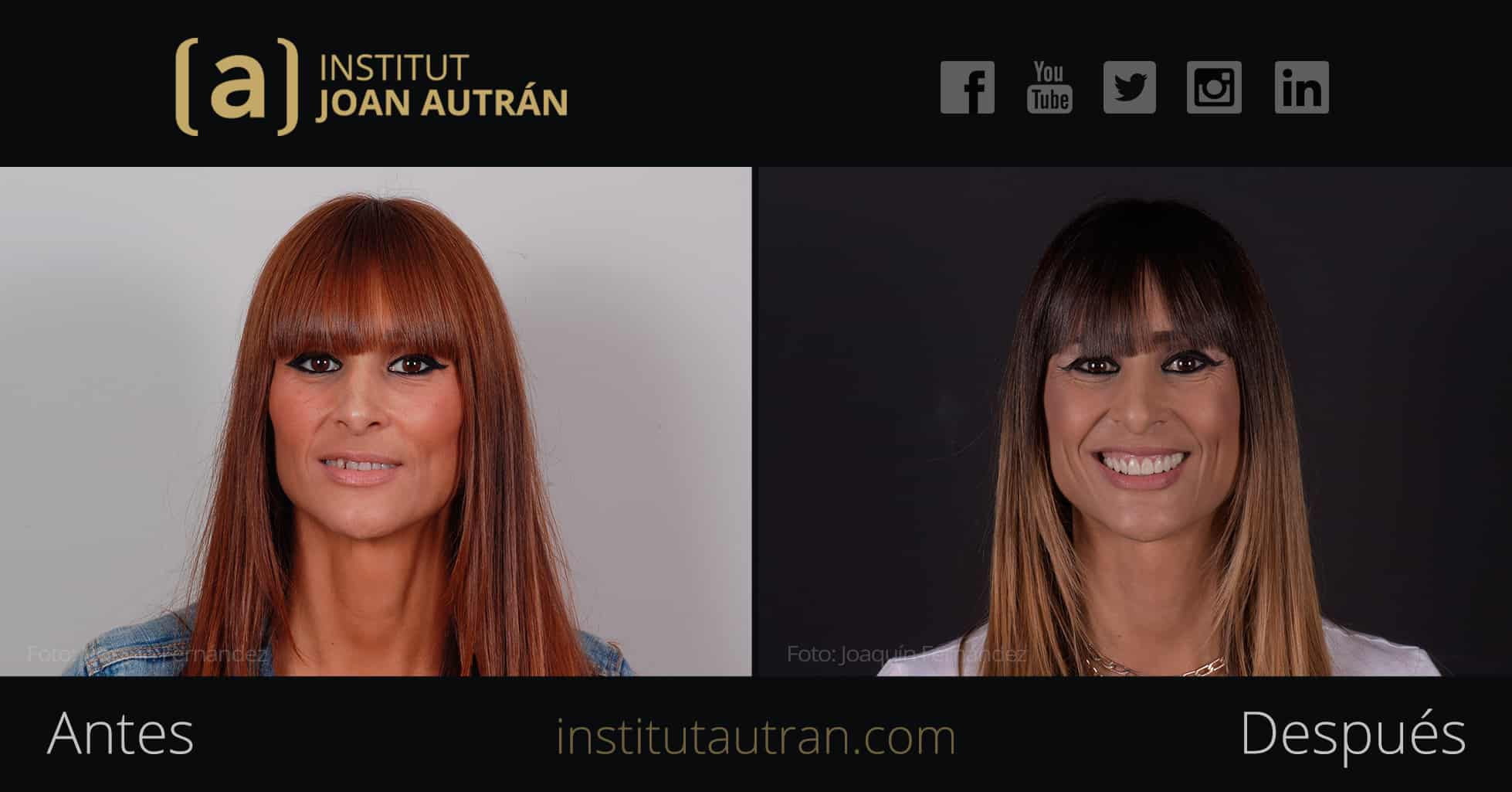 Caso 06 Video Testimonios | Institut Joan Autrán Estética Dental Barcelona